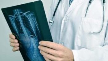 Meddi-salud inteligente- Alejandro Chavez Sandoval-Ortopedia-Procedimientos
