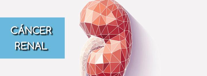 Meddi-enfermedades urológicas comunes-Cáncer renal