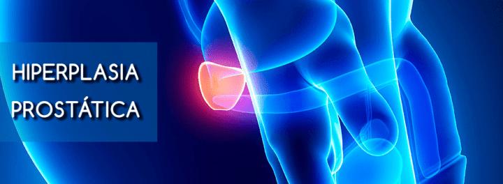 Meddi-enfermedades urológicas comunes- hiperplasia prostática