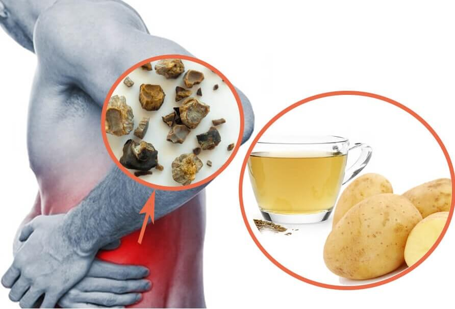 Meddi-piedras en los riñones- posibles síntomas