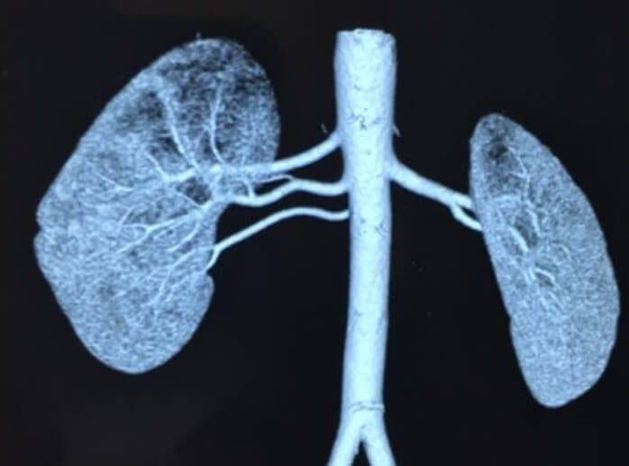 meddi- blog sobre trasplante renal. riñones
