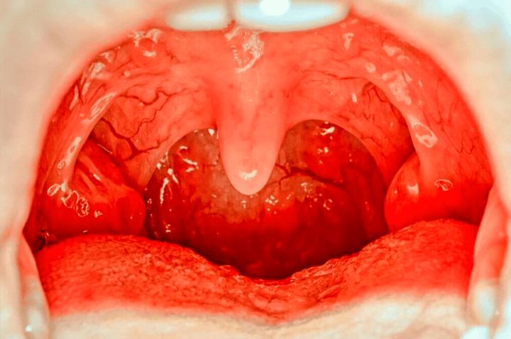 Meddi-Hipertrofia de amígdalas-o-amigdalitis