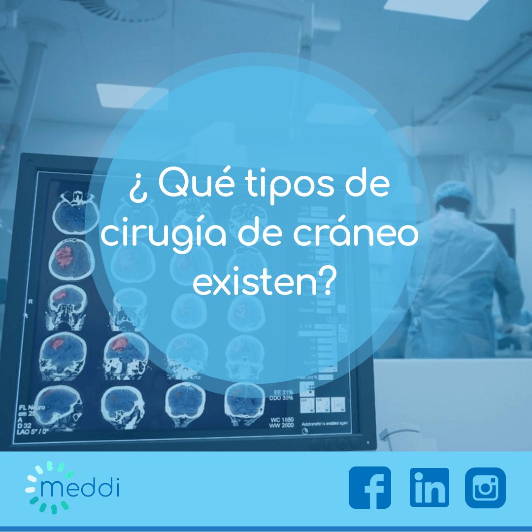meddi - blog sobre cirugía cerebral o cirugía de cráneo