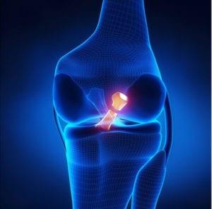 Lesiones en Ligamentos de Rodilla, El ligamento lateral interno, El ligamento lateral externo, El ligamento cruzado anterior, El ligamento cruzado posterior, meddi,