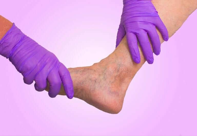 Insuficiencia venosa, varices, venas visibles, Tratamiento, causas, Dra. Carla Isabel Moreno Ramírez, Meddi