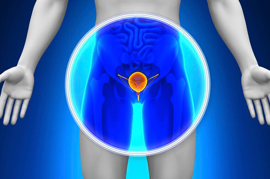 meddi-cancer-de-prostata