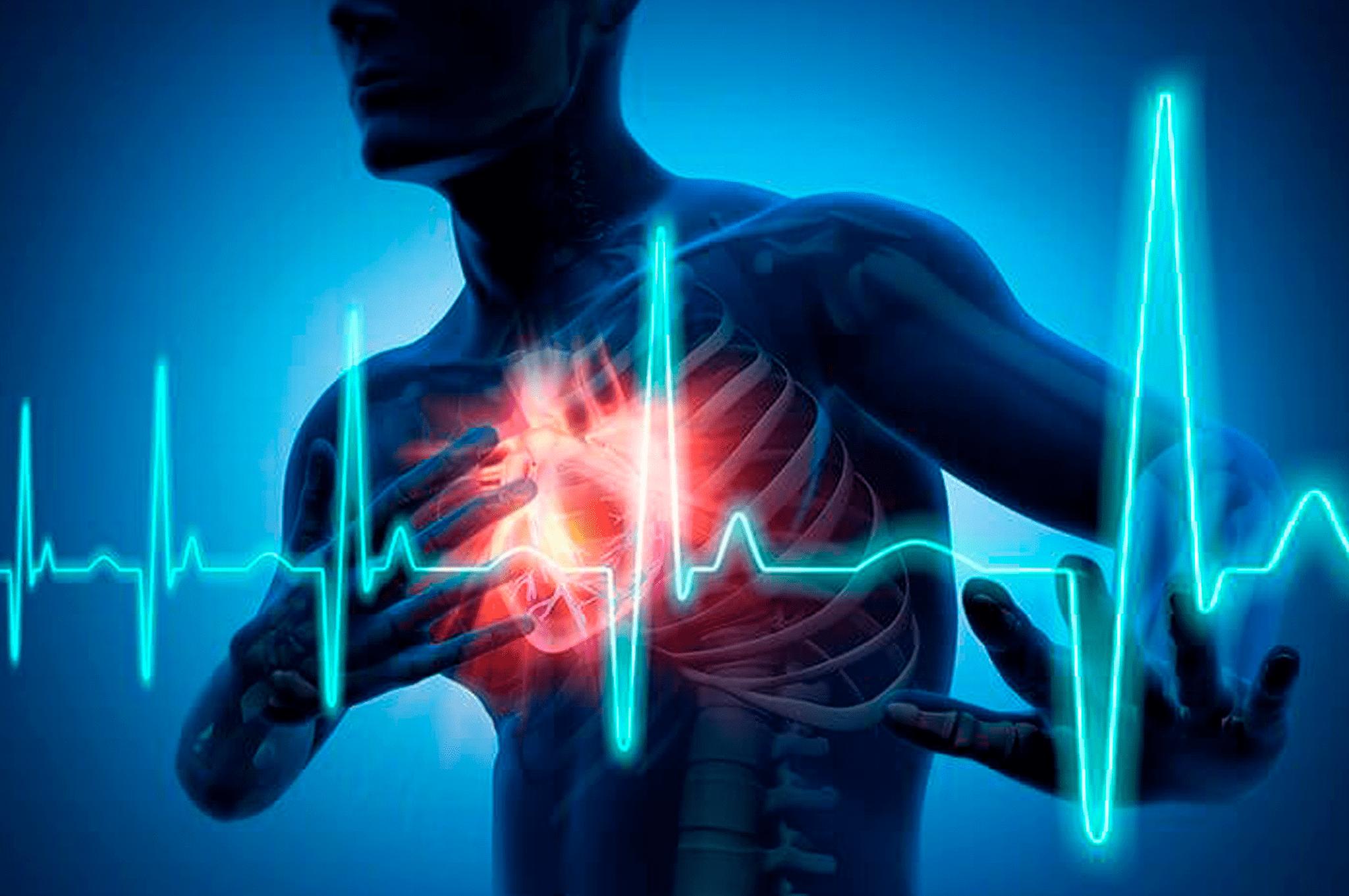 meddi - insuficiencia cardiaca-min
