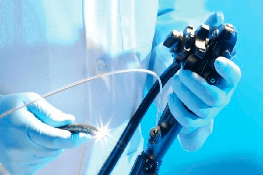 Meddi-Endoscopia-Dr.-Felix-Ventura