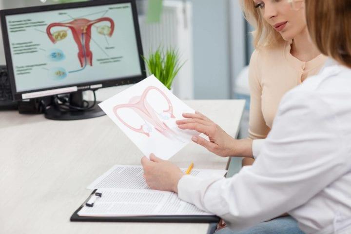 Meddi-Ginecología- síndrome de ovario poliquistico