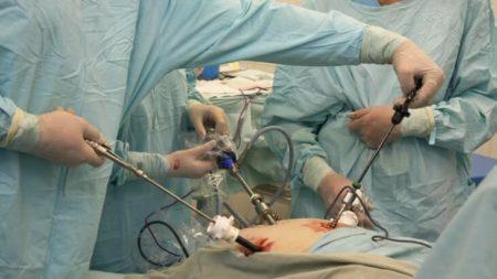 meddi-cirugía laparoscópica