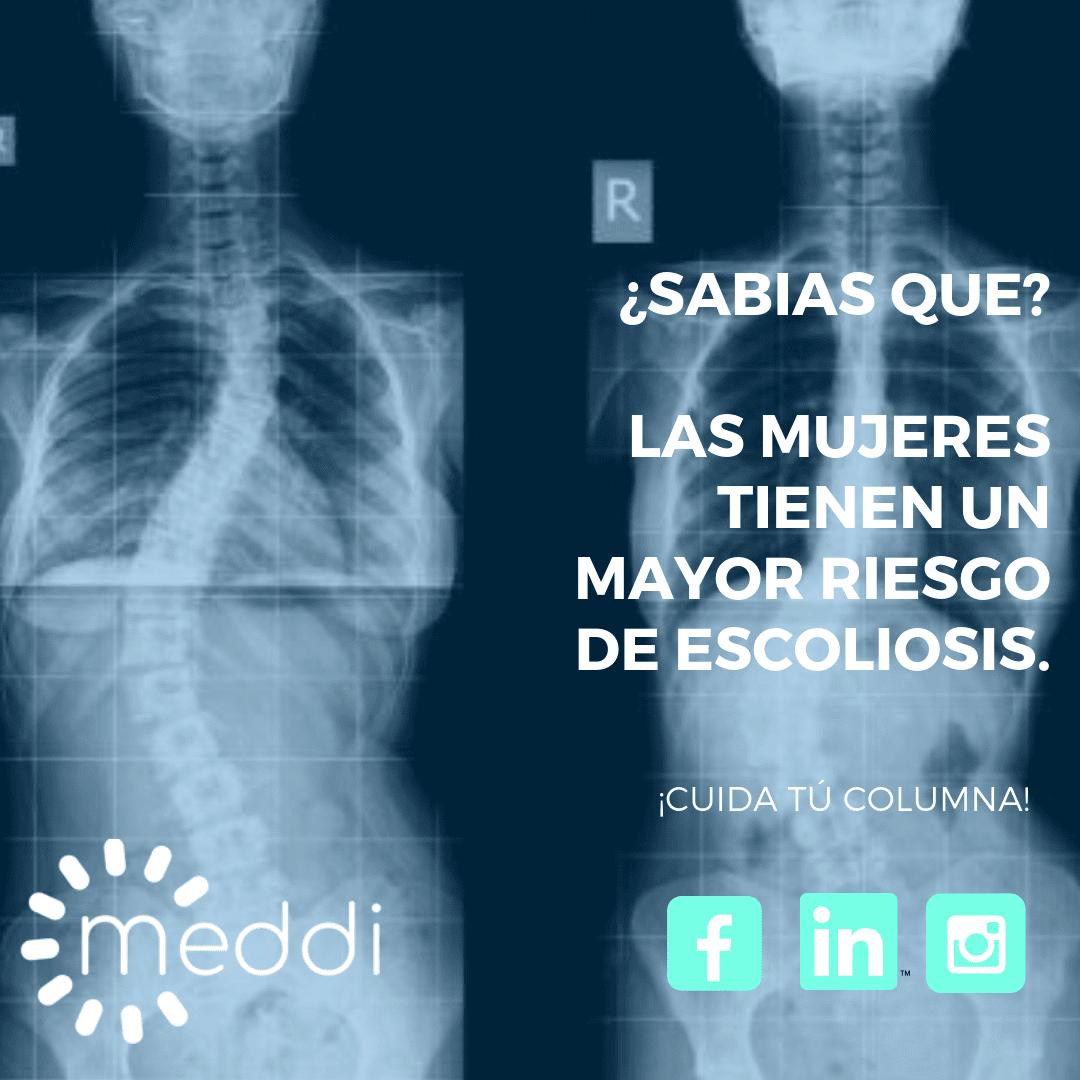 meddi- blog de escoliosis