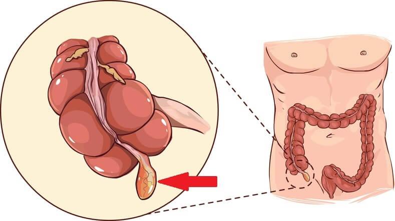 Meddi-Apéndice-apendicitis