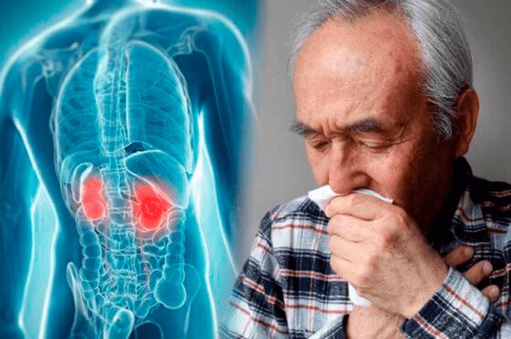 meddi-cáncer renal blog