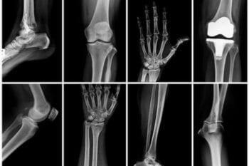 Meddi-salud inteligente- Esteban Castro Contreras-Ortopedia-Enfermedades