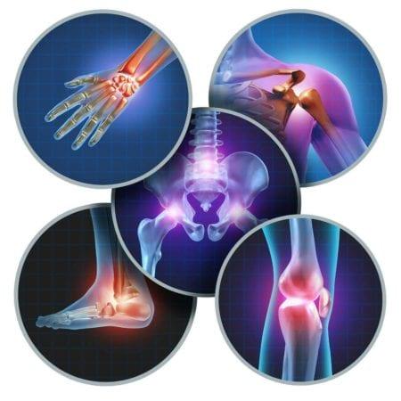 meddi-dr ramón del río flores enfermedades de ortopedia