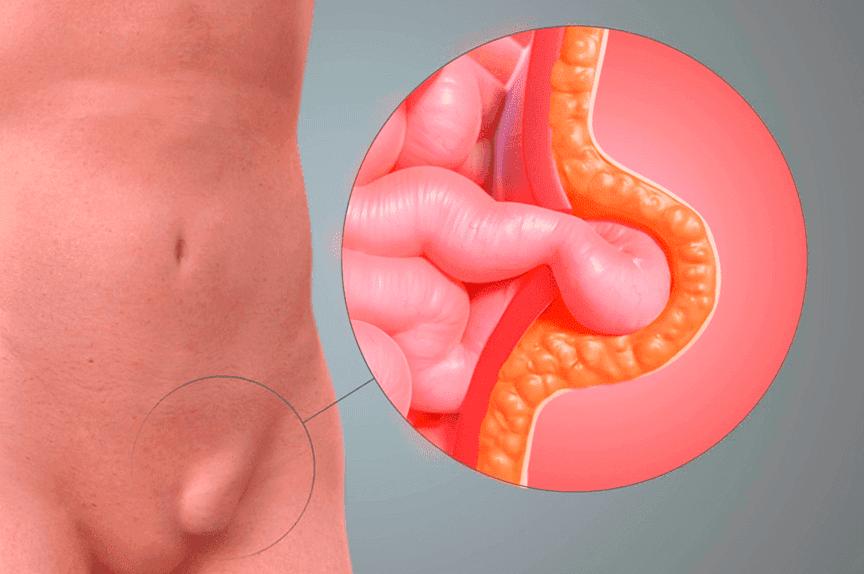 Meddi-hernia inguinal tratamiento-cirugía-general-1-min (1)-min