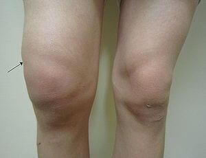 Meddi-síntomas de lesión de menisco