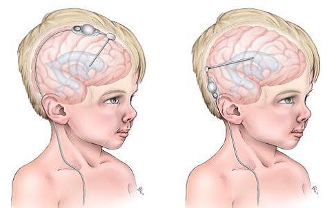 Meddi-hidrocefalia tratamiento