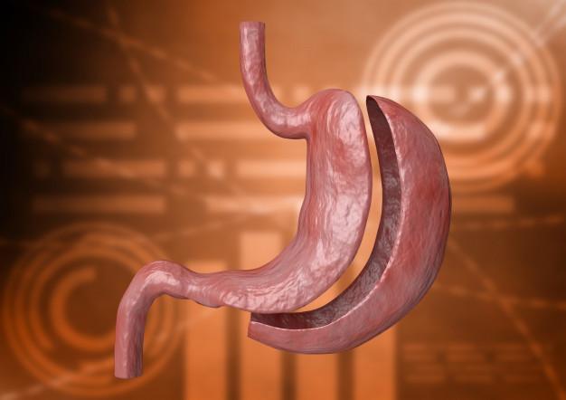manga gastrica - bariatra - cirugía general - obesidad