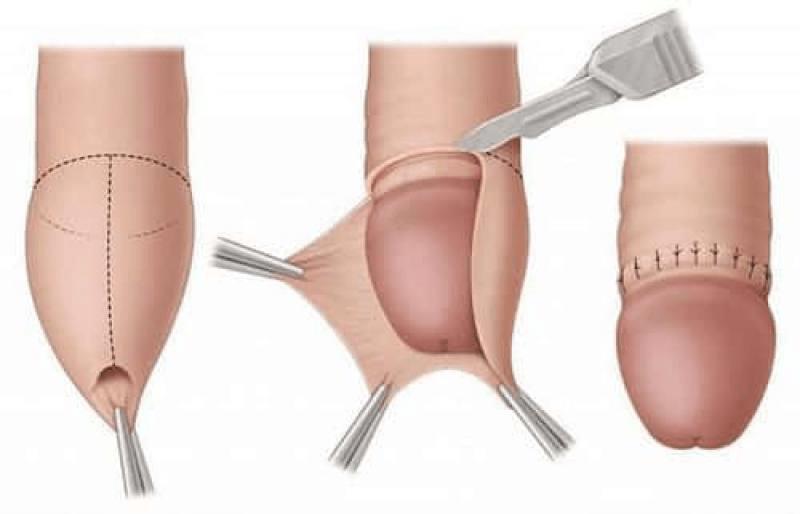 meddi-circuncisión-procedimiento