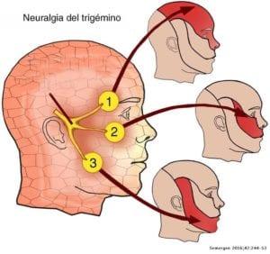 meddi-dolor de neuralgia del trigémino