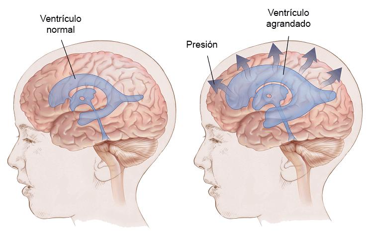 meddi-hidrocefalia definición