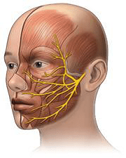 meddi-neuralgia trigemino