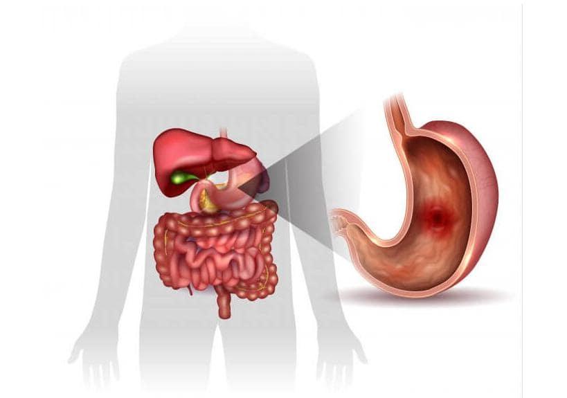 Meddi-ulcera gastroduodenal-gastroenterologia