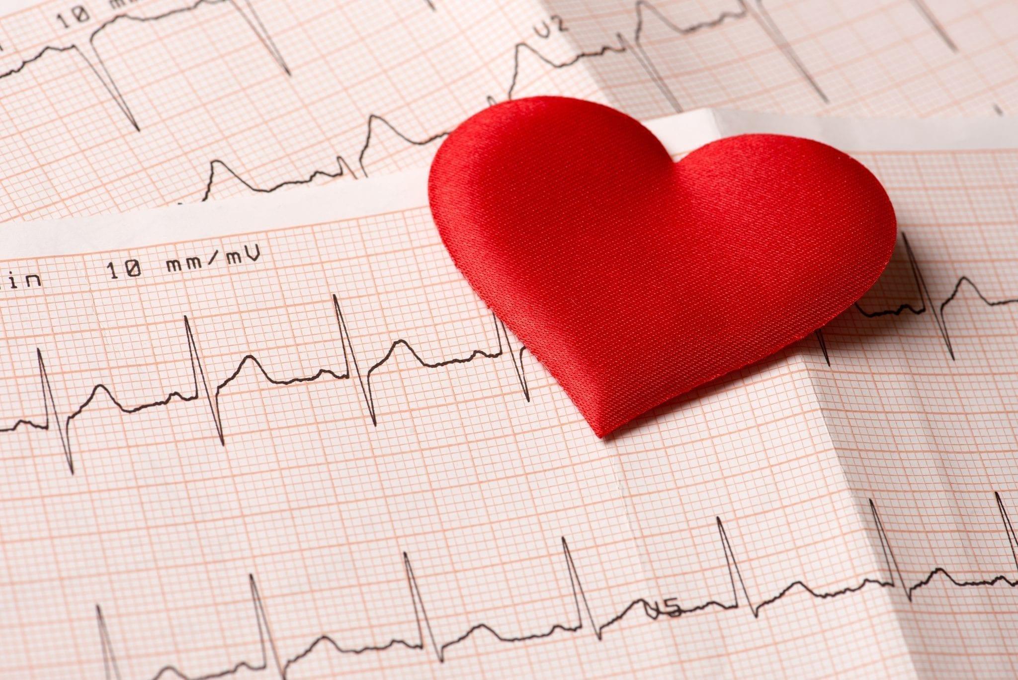 Meddi – salud inteligente – Cardiología – cardiólogo - Dr. Carlos Alejandro Chavez G.
