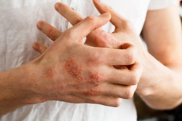 meddi- blog dermatitis atópica