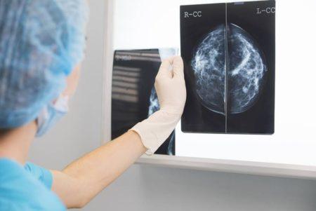 meddi- dra silvia leticia carmona oncologia procedimientos