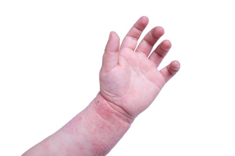 meddi- dermatitis atópica en niños